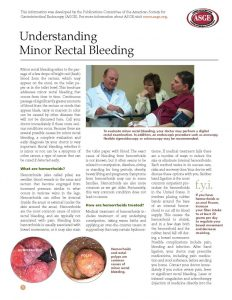thumbnail of understanding-minor-rectal-bleeding